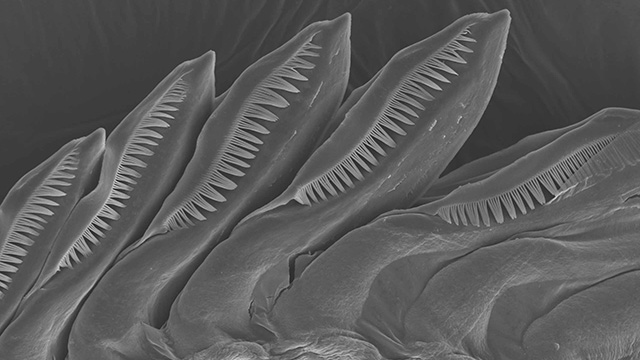 An image of a sea slug's teeth taken through a scanning electron microscope. Cal Poly Pomona has received a National Science Foundation grant to purchase one of the microscopes.